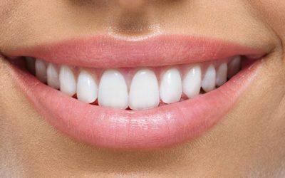 Rejuvenate Your Smile